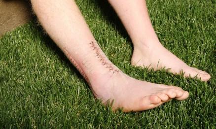 Cicatrizes das duas cirurgias de RV